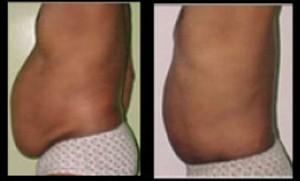 Kaayakalp Liposuction Surgery in Kolkata by The Best Plastic Surgeon