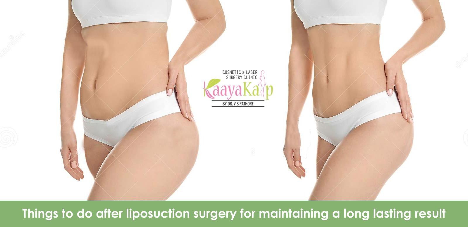 Kaayakalp What to do after liposuction surgery ?